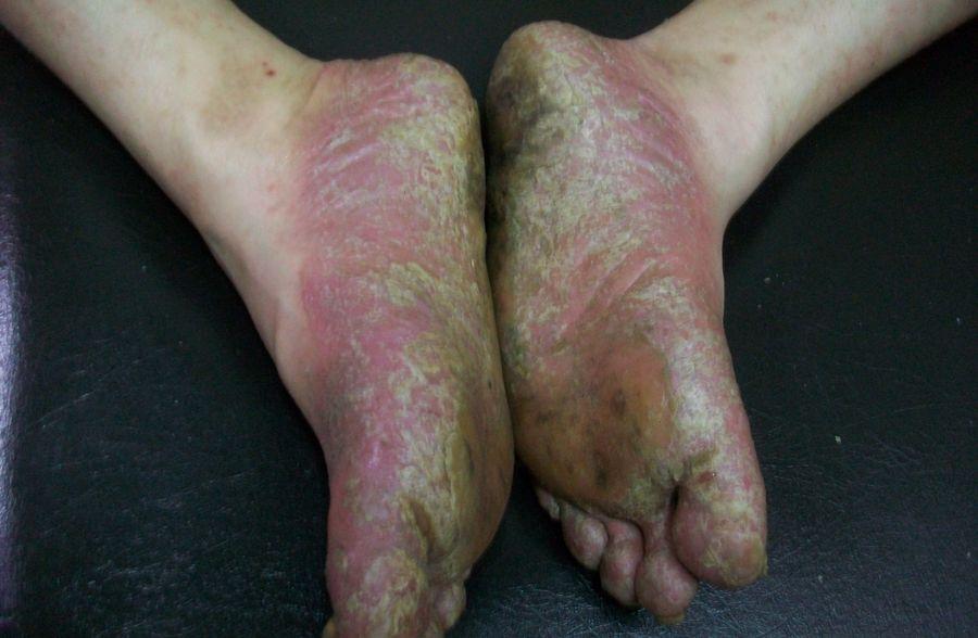 「醫學新知」難治的膿皰型乾癬